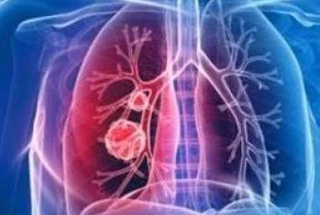 全力应对新型冠状病毒感染的肺炎疫情
