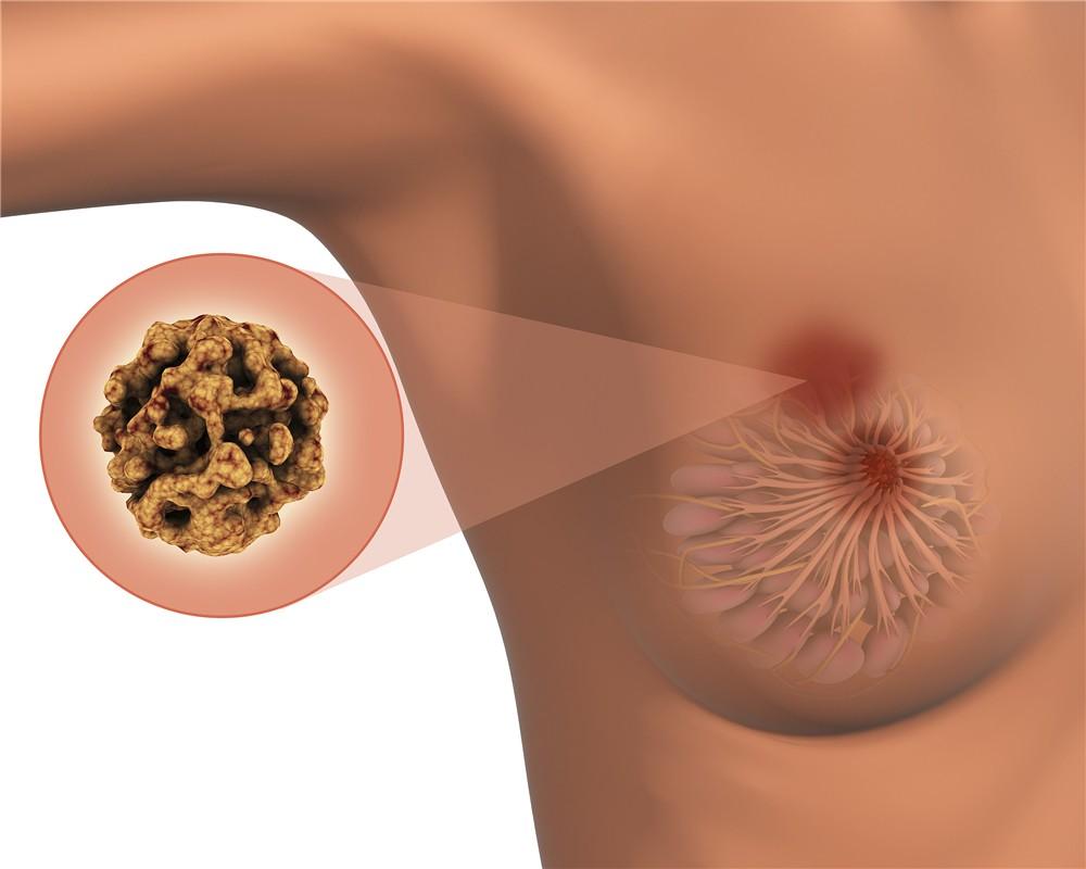 乳腺癌2.jpg
